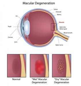 Macular Degereration