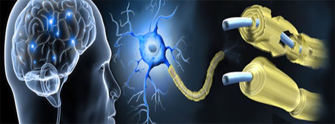 multiple_sclerosis2