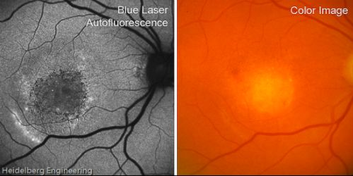 Vitelliform Macular Degeneration