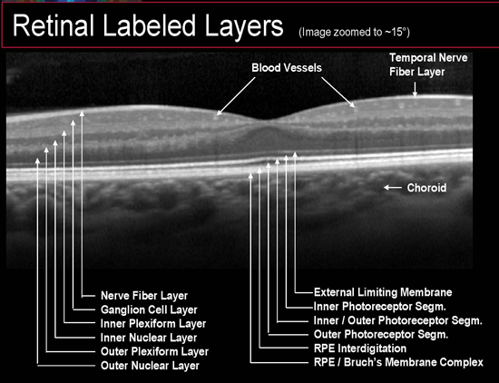 Ocular Coherence Tomography - Primary Eye Care